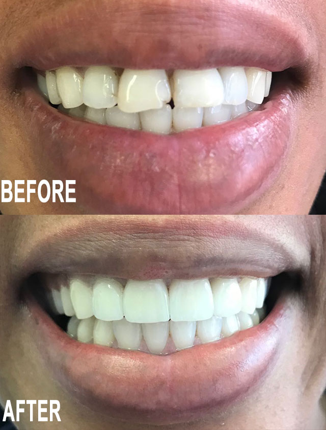 Before & After by Dr Ignus Terblanche